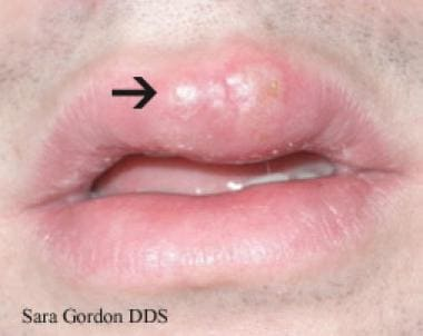 Herpes on the Face - Genital Herpes Blog