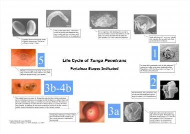 Life cycle of Tunga penetrans - Fortaleza stages i