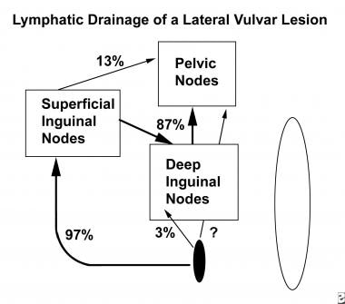 Diagram of lymphatic drainage of a lateral lesion.