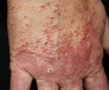 Erythematous to brown papules and erythematous to