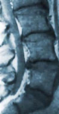 Magnetic resonance image of the lumbar spine. This