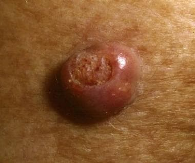 Molluscum Contagiosum Background Etiology Epidemiology