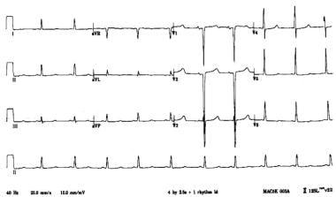 Electrocardiogram (ECG) findings in severe hypocal
