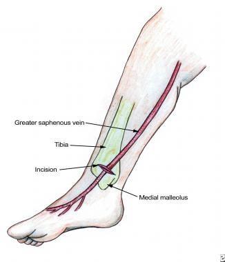 Saphenous vein cutdown. Note relation of saphenous