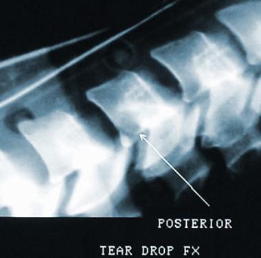 Posterior teardrop fracture.