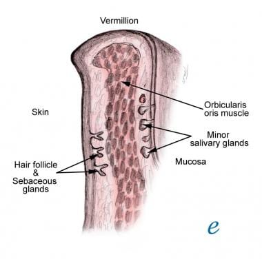 Cross-section of lip.