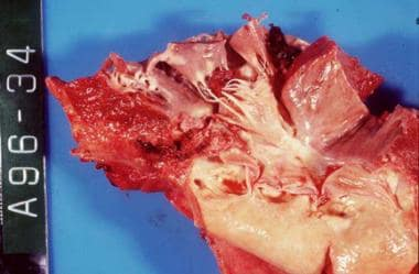 Acute bacterial endocarditis caused by Staphylococ
