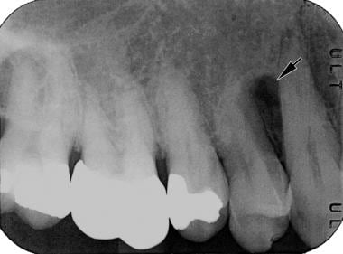 Lateral periodontal cyst presenting as a tear drop