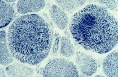 Whorled fibers on nicotinamide adenine dinucleotid