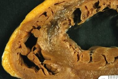 Early healed myocardial infarction, anterior septu