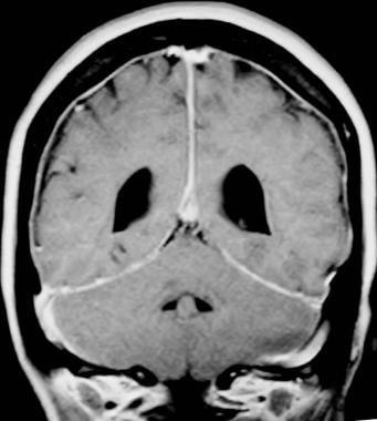 Gadolinium-enhanced, coronal, T1-weighted MRI show