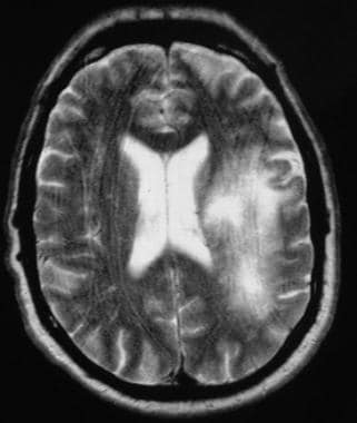 T2-weighted MRI in a patient infected with HIV dem