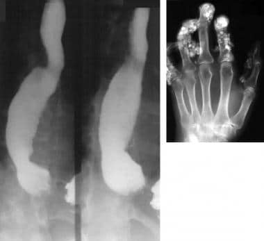 Barium swallow study shows marked dilatation of th