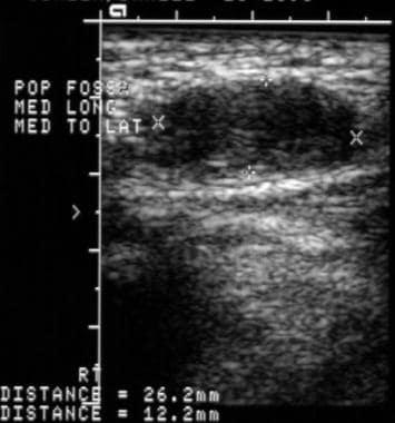Longitudinal ultrasonographic image of a Baker cys