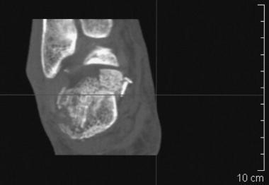Calcaneus, fractures. CT image demonstrates a comm