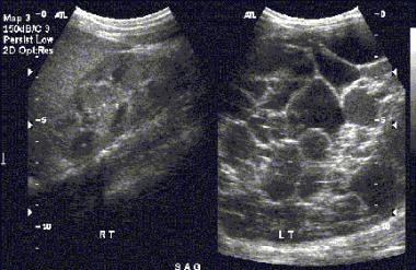 Multilocular cystic nephroma. Sonograms show a nor