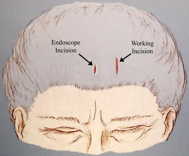 Illustration of incisions used for endoscopic repa