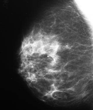 Benign microcalcifications: cystic hyperplasia.