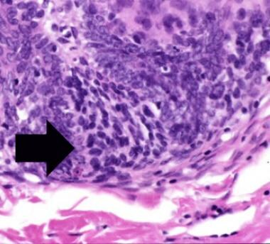 Papillary-mesenchymal bodies are structures associ