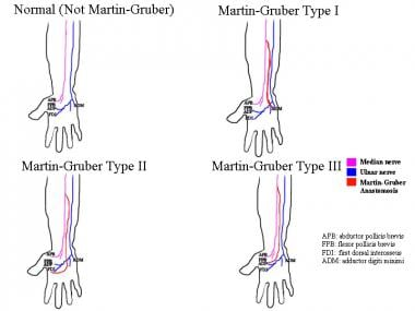 Normal median and ulnar patterns are compared with