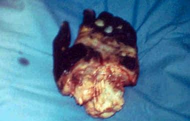 Amputation of a hand because of tissue necrosis.