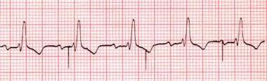 Ventricular undersensing. Rhythm strip showing ven