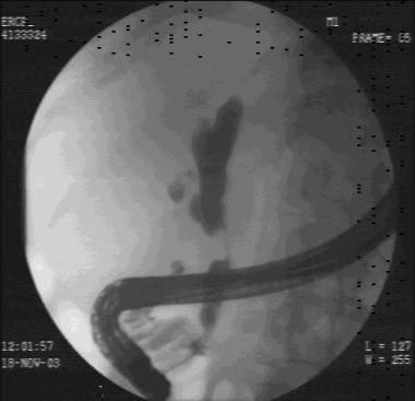 Endoscopic retrograde cholangiopancreatographic ch