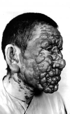 Post–kala-azar dermal leishmaniasis. Courtesy of R