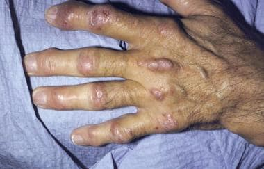 Nodules on a hand with deformed joints from arthri