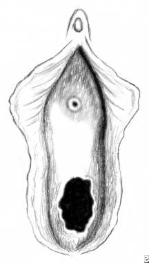 Urethral prolapse. Postoperative depiction of a no