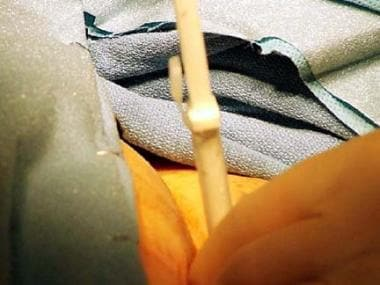 Percutaneous suprapubic tube is placed prior to re