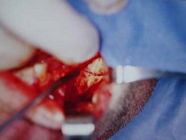 Intraoperative view with external oblique ridge in