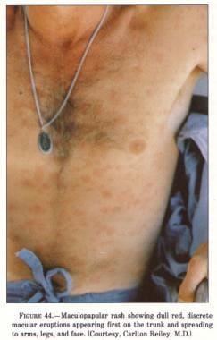 Maculopapular rash.
