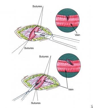 Saphenous vein venotomy. Venotomy is made during s