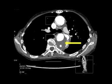 Axial CT scan through the mid-descending aorta in