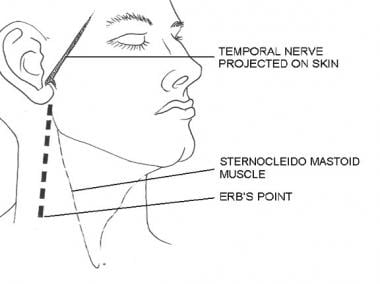 Course of the temporal nerve and location of the E