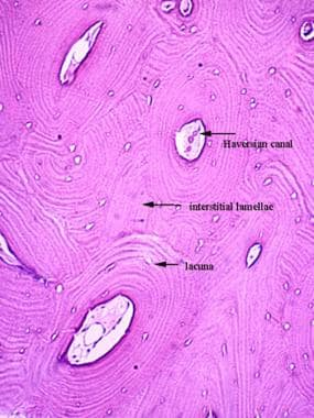 Micrograph of haversian systems. Cortical bone wit