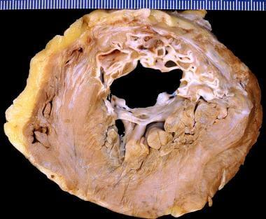 Healed myocardial infarction, anterior left ventri