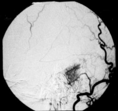Selective angiogram of right occipital artery show