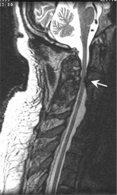 This sagittal T2-weighted cervical spine magnetic