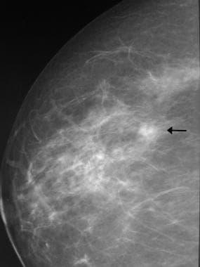 Breast cancer, ultrasonography. Craniocaudal scree