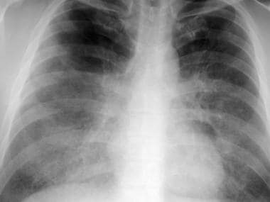 Frontal chest radiograph from a patient with pulmo