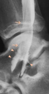 Ankle, tibialis posterior tendon injuries. Tenogra