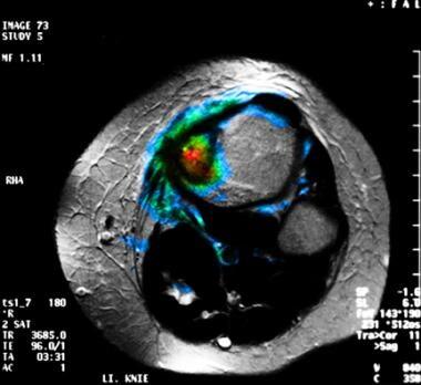 Fusion magnetic resonance imaging (MRI) and positr