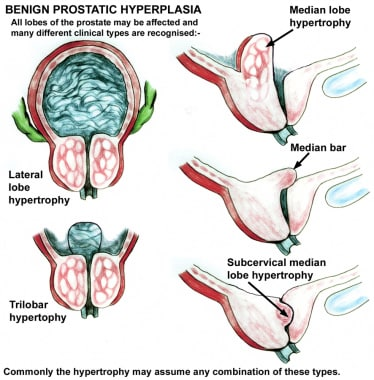 Benign prostatic hypertrophy of the lateral and me