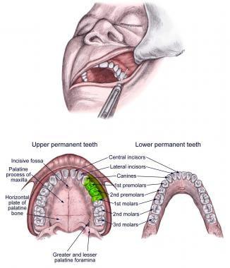 Middle superior alveolar nerve (MSA) block.