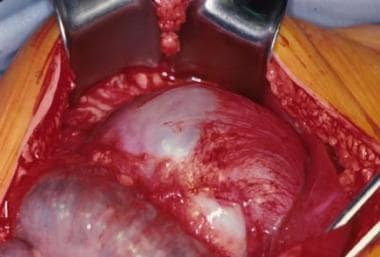 An intraoperative view of a gastric teratoma being