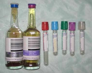 Blood collection tubes.