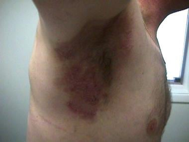 Right axilla with erosive erythematous plaques.