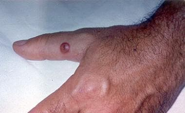An early lesion of orf (papular stage).